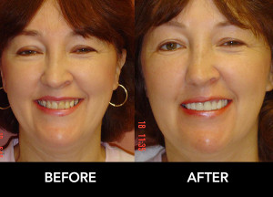 Bridgework-Crowns-Restore-Smile-before-after