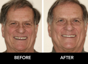 Extensive-Restorative-Dentistry-before-after