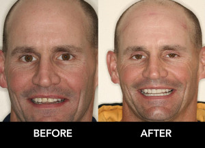 Full-Mouth-Reconstruction-t-before-after