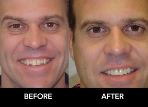 Lateral-Incisors-Enhanced-before-after