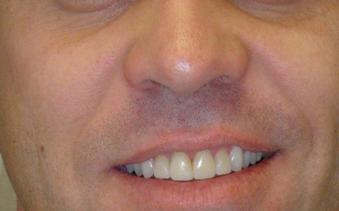 Anterior Crownwork Completed to Improve Shape of Teeth