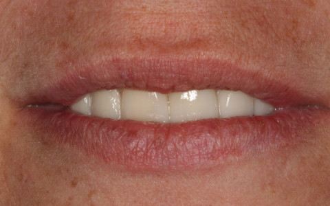 Whitening/Veneers/Crownwork – Results Amazing!