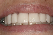 Rounder, Whiter, Straighter Teeth