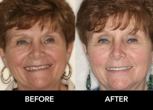 whittening-crowns-improve-Smile-before-after