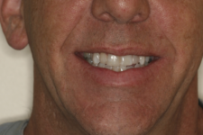 Whitening and Composite Bonding