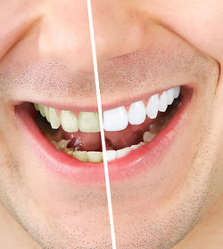 How to Alleviate Teeth Whitening Side Effects